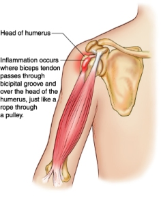 Bicep Tendonitis is Common in Climbers