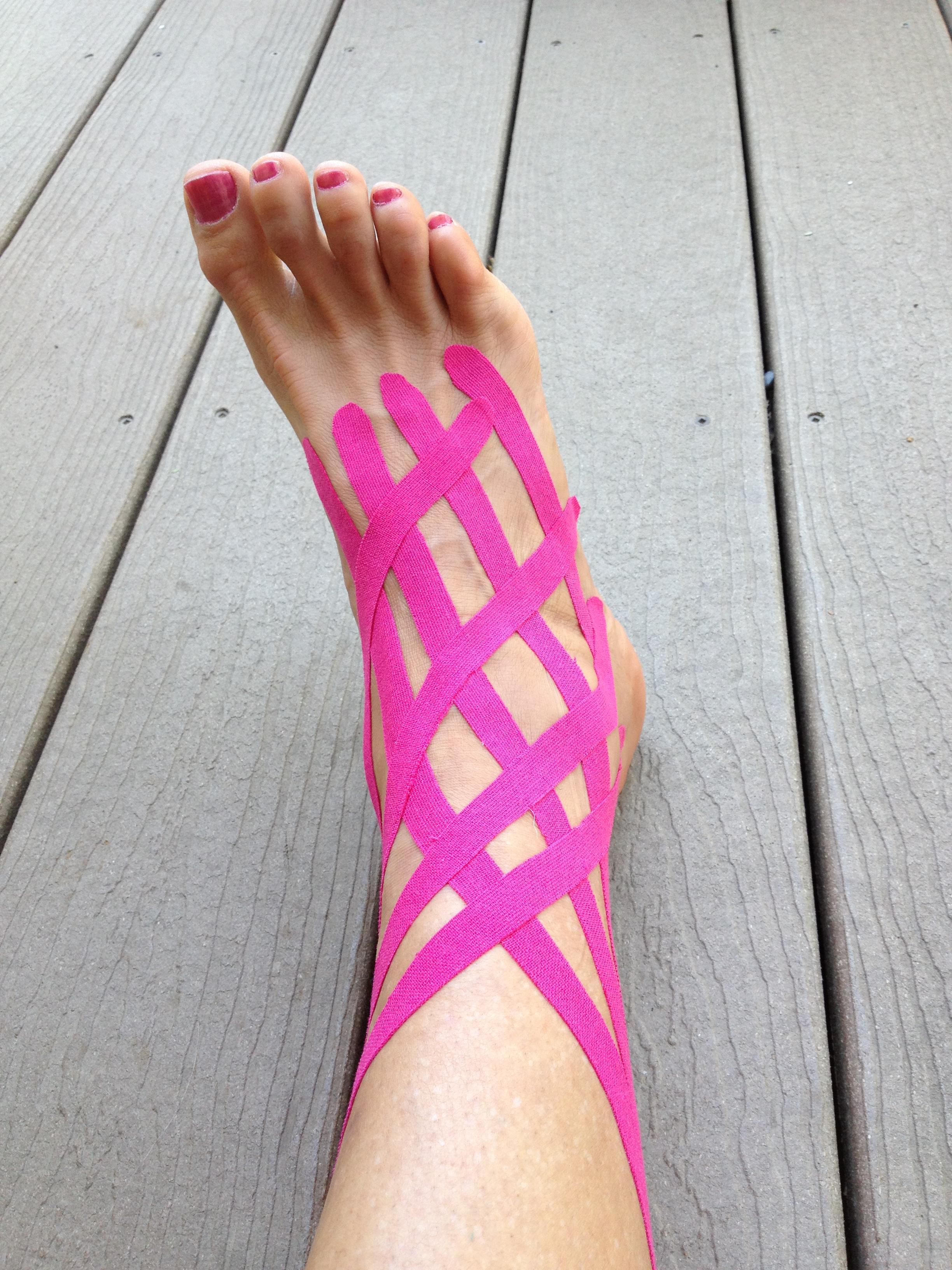 Squishy lump on top of foot - Kinesiotape Application For Swelling