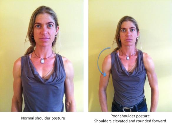 Brachial plexus posture